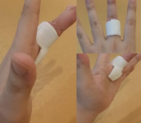 石岡 ばね指の固定